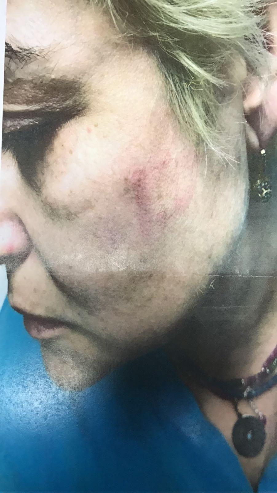 """האחות שהוכתה על ידי המטופלת (צילום: דוברות בית החולים רמב""""ם)"""