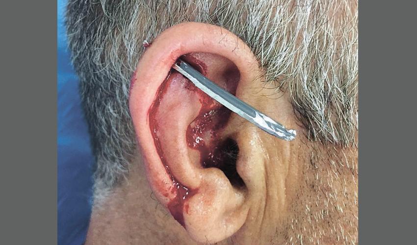 שבב המתכת שחדר לתנוך אוזנו של המסגר (צילום: שירותי בריאות כללית)