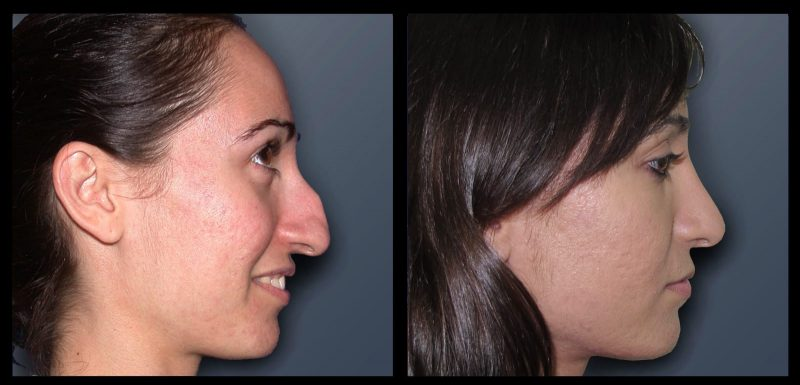 """לפני ואחרי ניתוח אף. קרדיט: ד""""ר רון עזריה"""