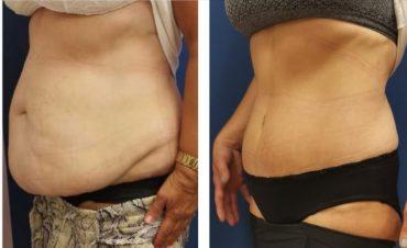 לפני ואחרי הטיפול. צילום עצמי