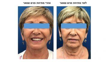 לפני ואחרי מתיחת פנים וצוואר