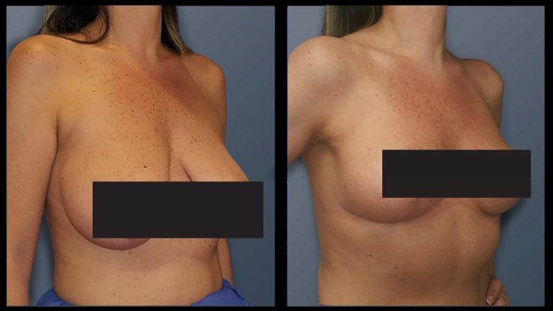 """לפני ואחרי ניתוח חזה. קרדיט: ד""""ר רון עזריה"""