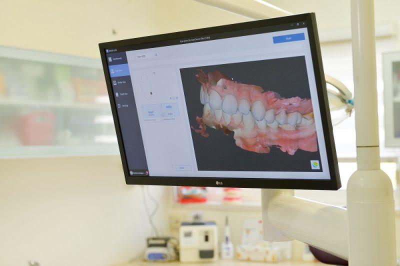 טיפולי שיניים בלייזר במרפאתו שח ד:ר בר דיין. צילום דודי פפראצי