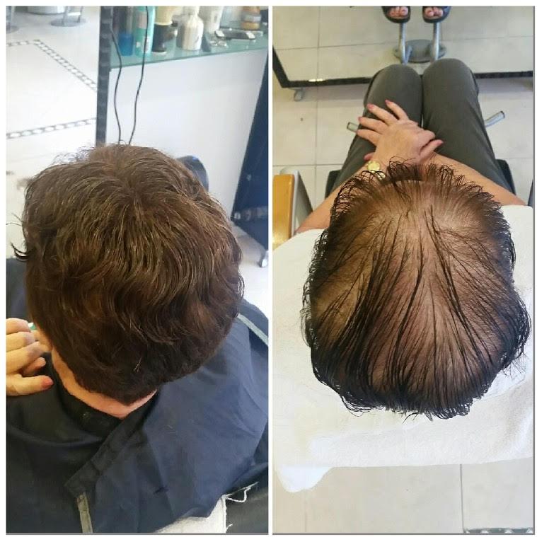 לפני ואחרי - טיפול בדילול שיער על ידי תוספות. צילום עצמי