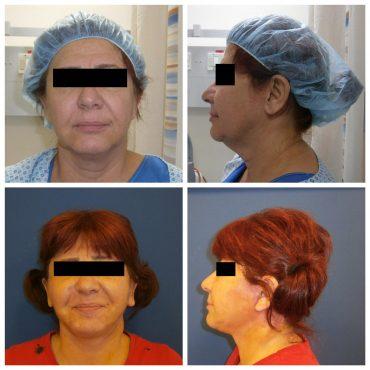 """לפני ואחרי הטיפול אצל ד""""ר קועאר מנאר. צילום: ד""""ר קועאר מנאר"""