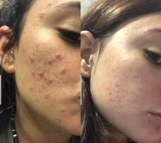 טיפול באקנה, לפני ואחרי. צילום עצמי