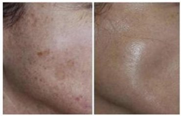 פילינג יהלום, לפני ואחרי. צילום עצמי