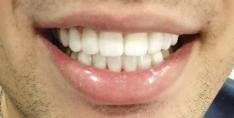"""ציפויים מזרקוניה לחיוך לבן אצל ד""""ר אטרי. צילום עצמי"""