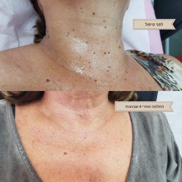 לפני ואחרי טיפול עור. צילום עצמי