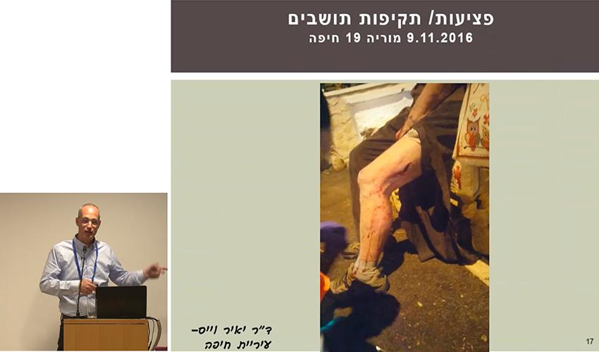 """תקיפה של אדם בחיפה על ידי חזיר בר (צילום מתוך הרצאתו של ד""""ר יאיר וייס)"""