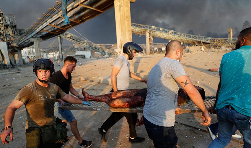 פינוי פצוע בביירות (צילום: Hussein Malla, AP)