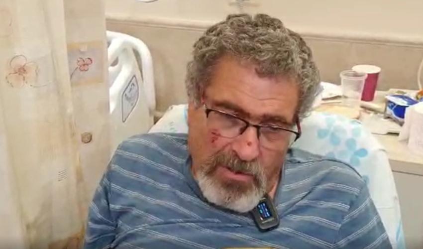 """נפצע מתקיפת חזיר בר. דוד סוכוי (צילום: דוברות רמב""""ם)"""